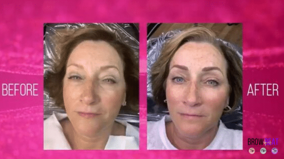 Permanent Makeup Cover Up Using Microblading: Dorothy's Experience